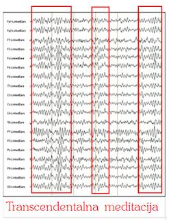 EEG alfa valovi med Transcendentalno meditacijo